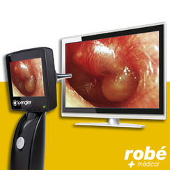 http://www.robe-materiel-medical.com/materiel-medical-Otoscope+video+Otoscreen+2+Spengler-OTO700.html